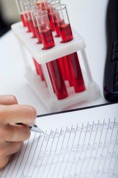 Гепатит как пишется в анализах