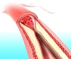 Витамин с снижает холестерин