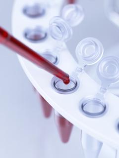 повышение алт в крови причины и лечение