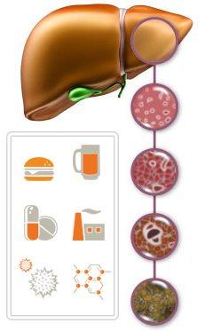 При циррозе печени можно изюм