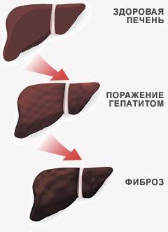 рекомендации по лечению гепатит с