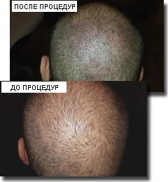 Дарсонваль схема лечения выпадения волос