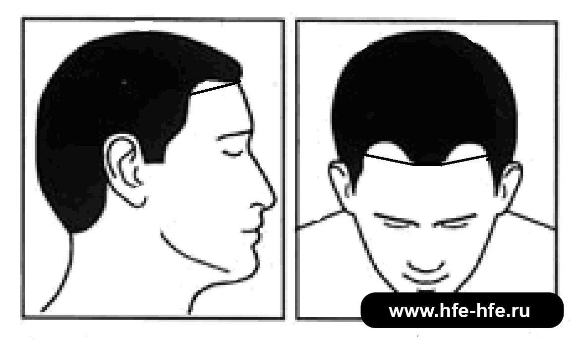 степень облысения мужчин 1