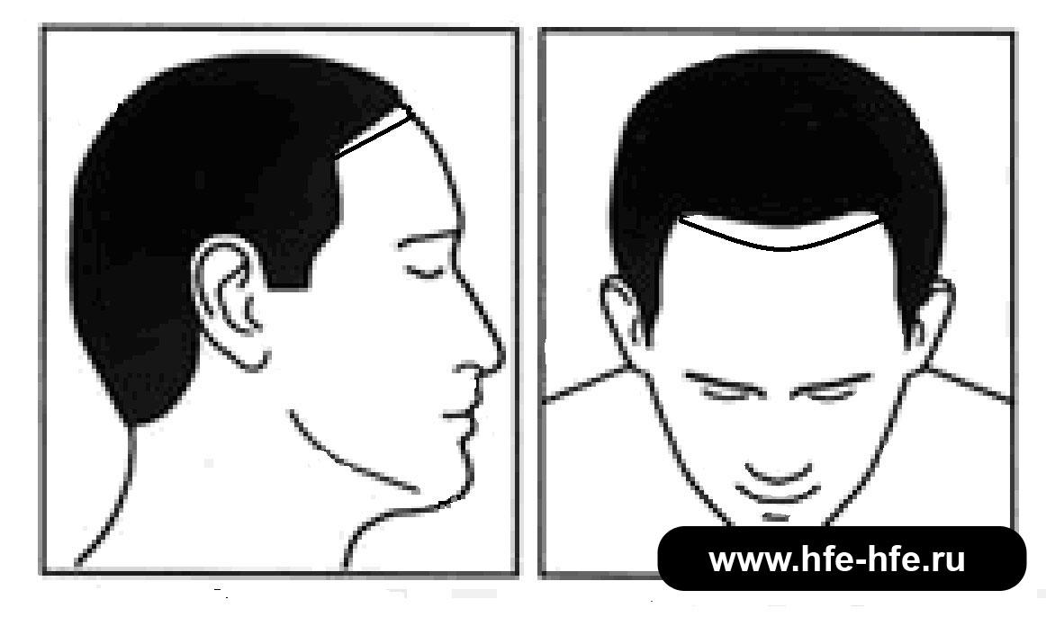 степень облысения мужчин 2А