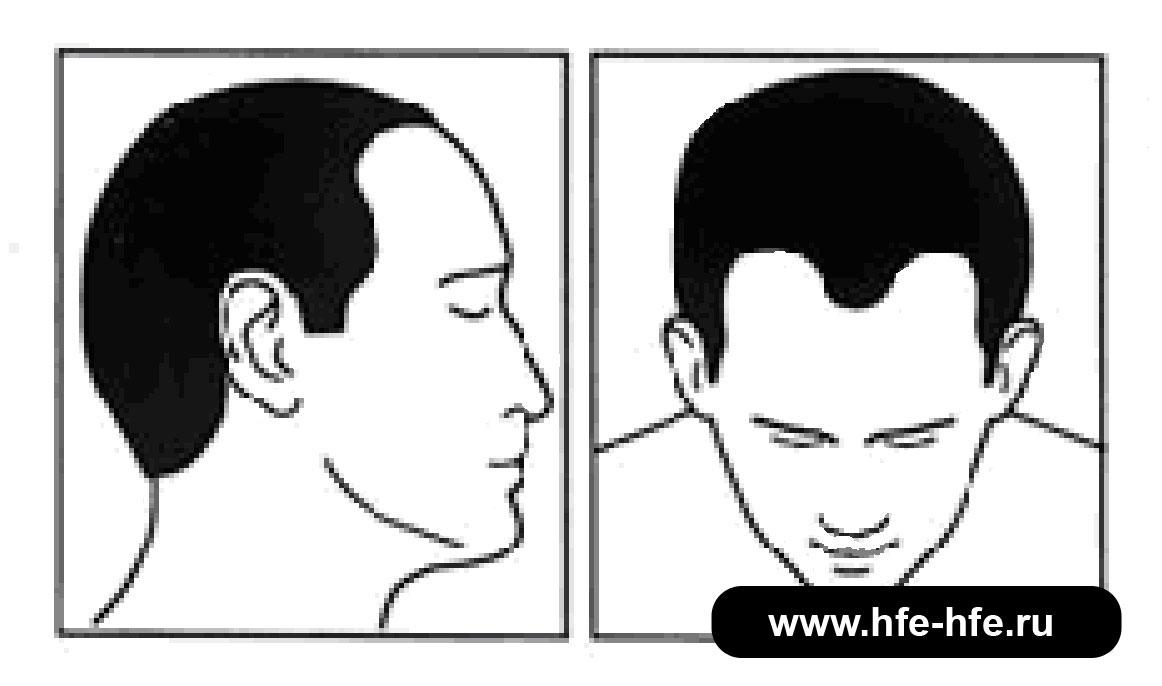 степень облысения мужчин 3