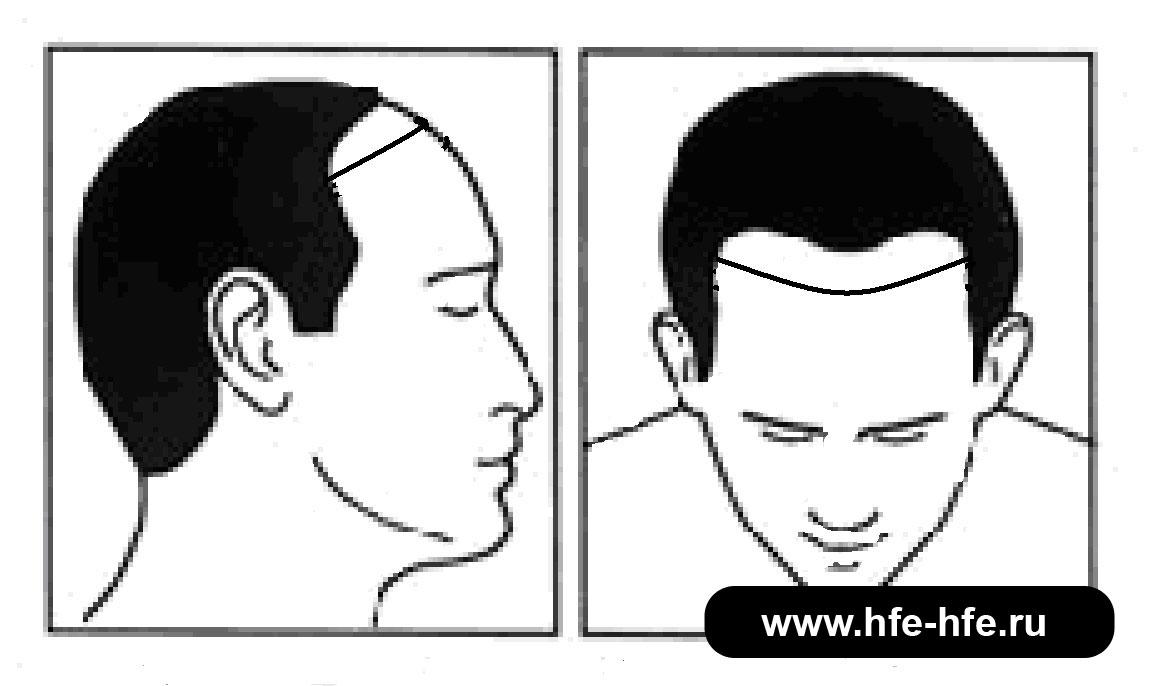 степень облысения мужчин 3А