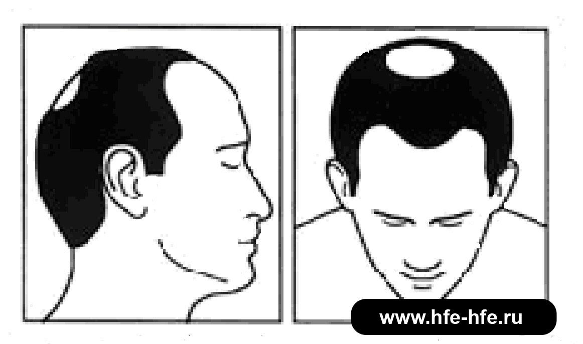степень облысения мужчин 3Б