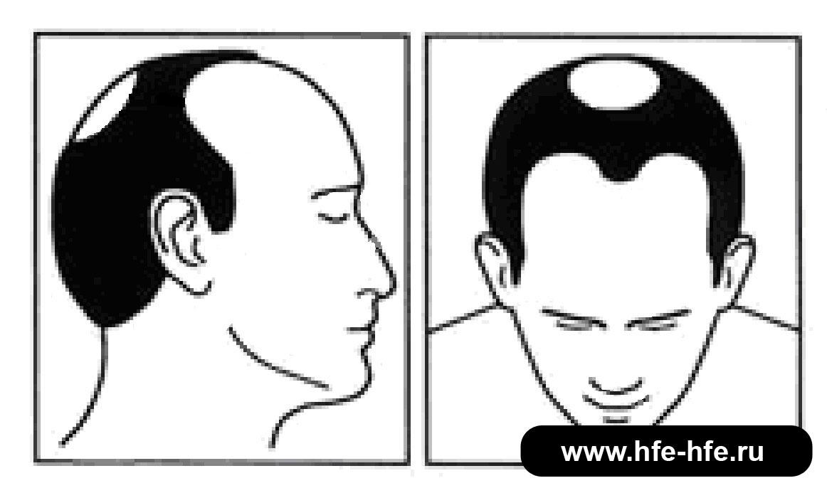 степень облысения мужчин 4
