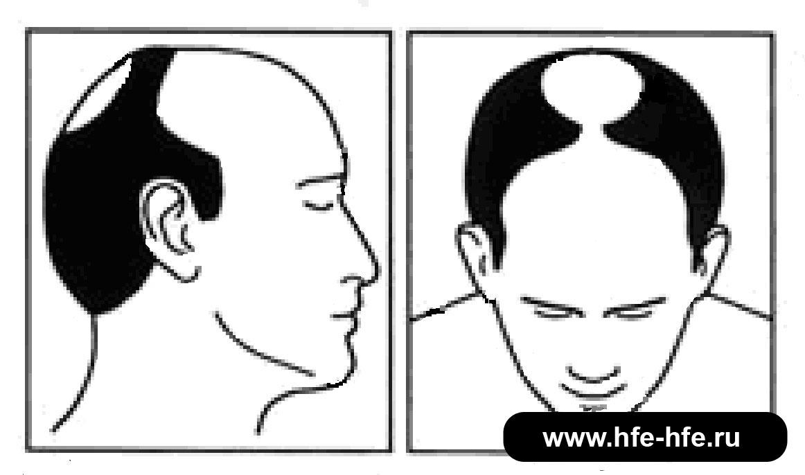 степень облысения мужчин 5