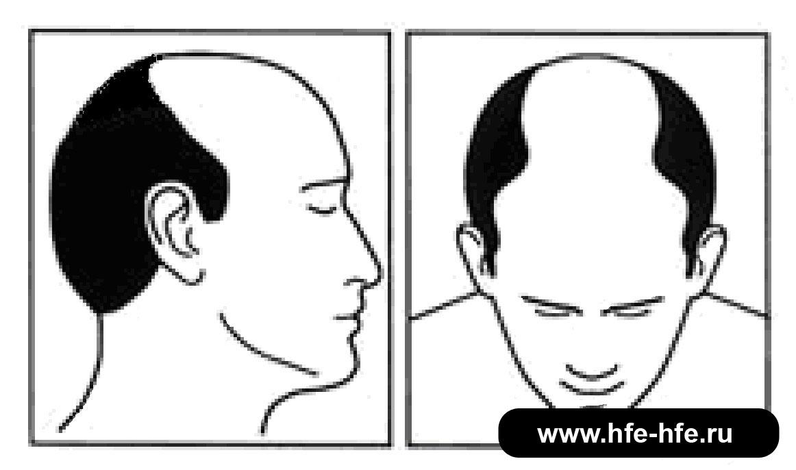 степень облысения мужчин 5А