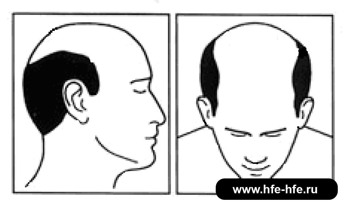 степень облысения мужчин 6
