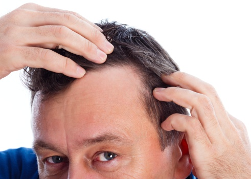 Клиника в москве по пересадке волос в