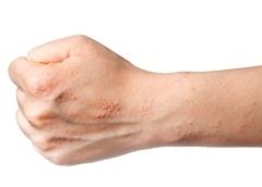 Нейродермит (атопический дерматит): что это, как проявляется, симптомы, признаки, методы лечения