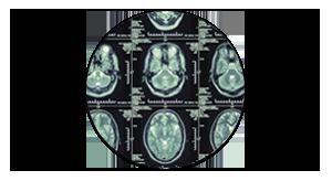 Клиника неврологии