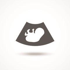 Скрининг при беременности: сроки проведения и когда делают первый, второй и третий скрининг?
