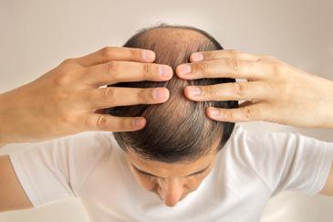 Увеличенные луковицы волос