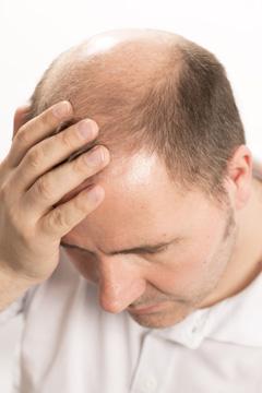 трансплантация волос в москве