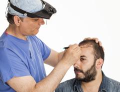 методы трансплантации волос