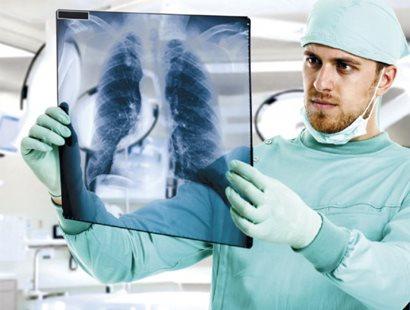 Пленка рентгеновская медицинская