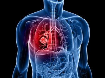 лечения рака груди