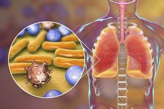 последствия ОРВИ и гриппа