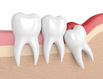 Удаление мудрого зуба