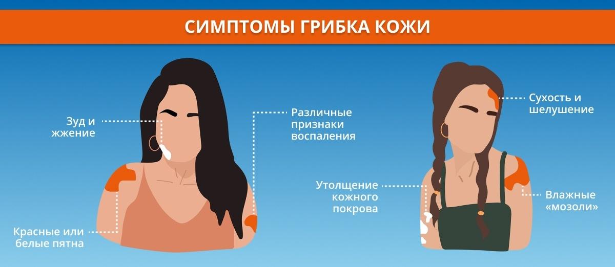 симптомы грибка кожи