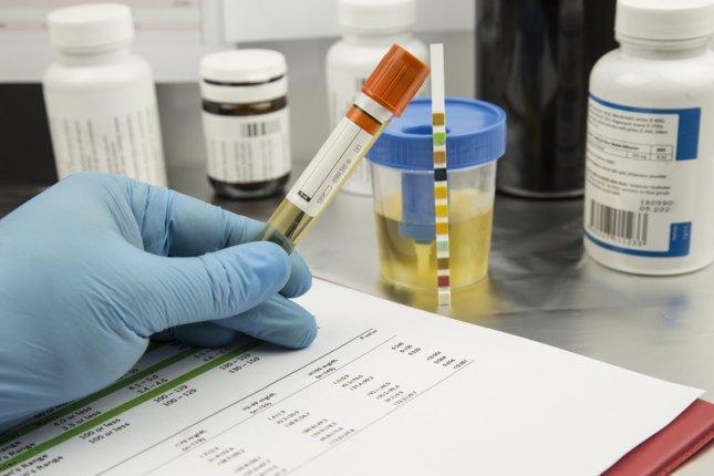 Анализ мочи и крови на лейкоциты