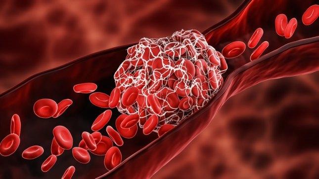 Тромбоциты в крови человека