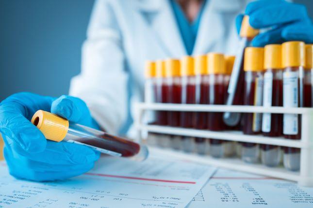 Лейкоцитарная формула крови