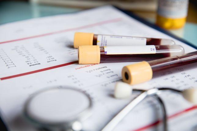 Общий анализ крови у взрослых людей