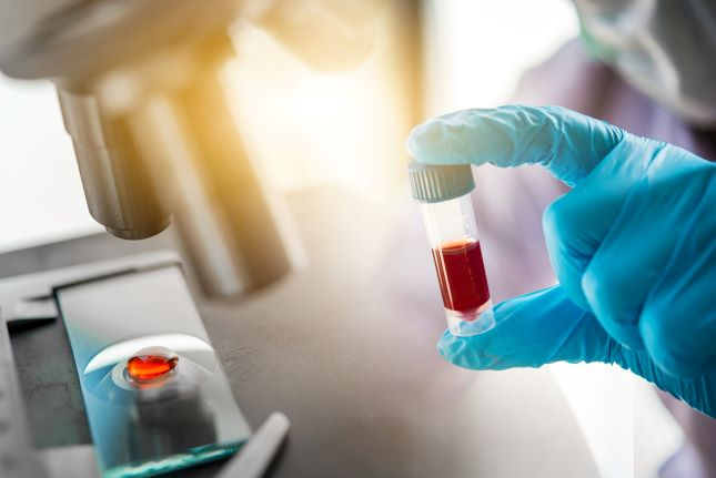 Гормональное исследование крови