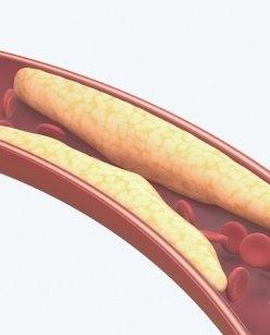 Исследование уровня лептина в крови